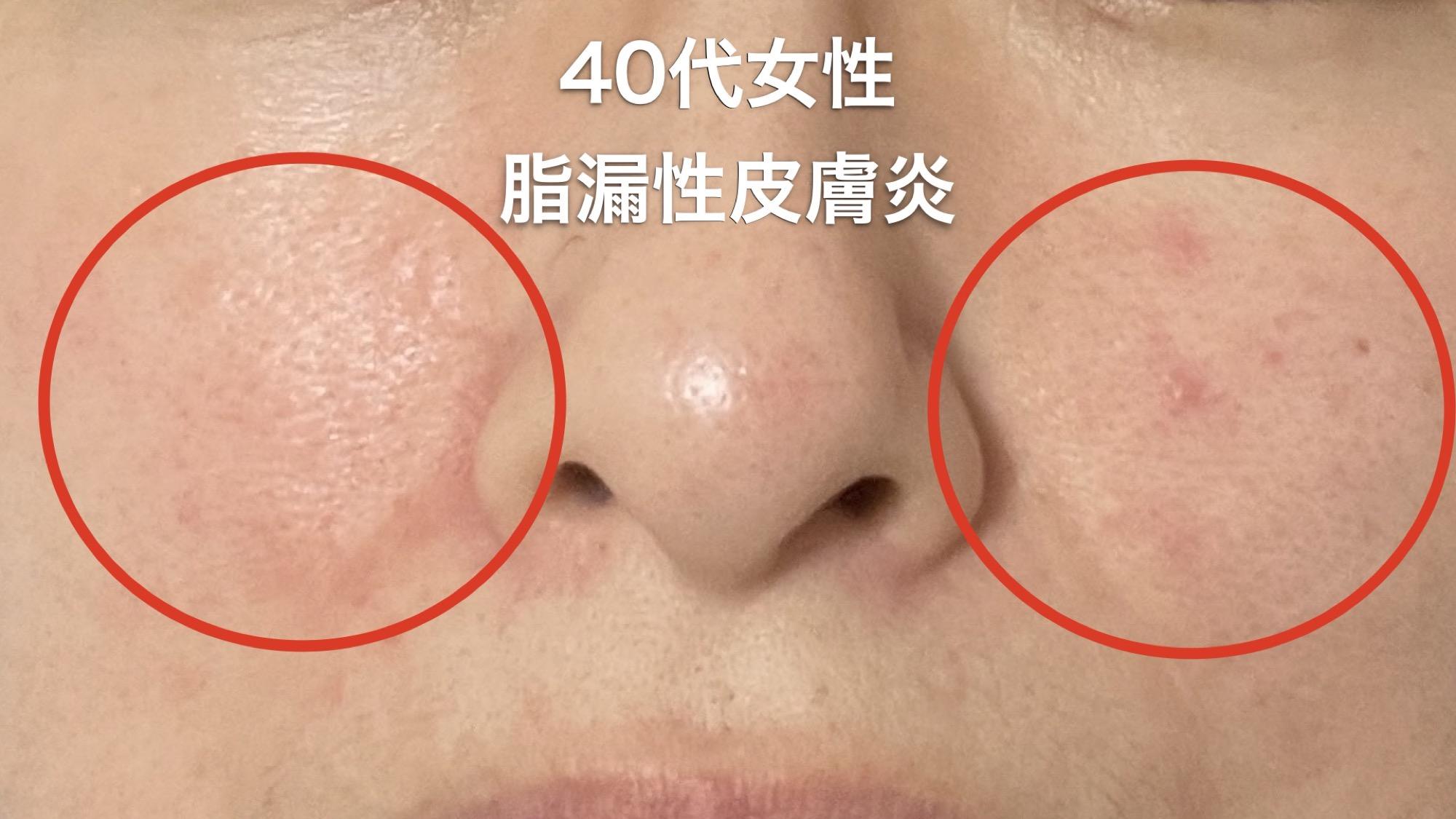 肌荒れの原因が脂漏性皮膚炎だった話(40代女性)